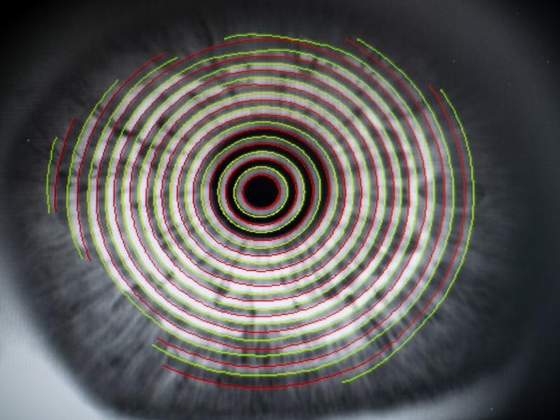 Kontaktlinsenanpassung vom Fachmann bei Augenoptik Waltner in Bispingen